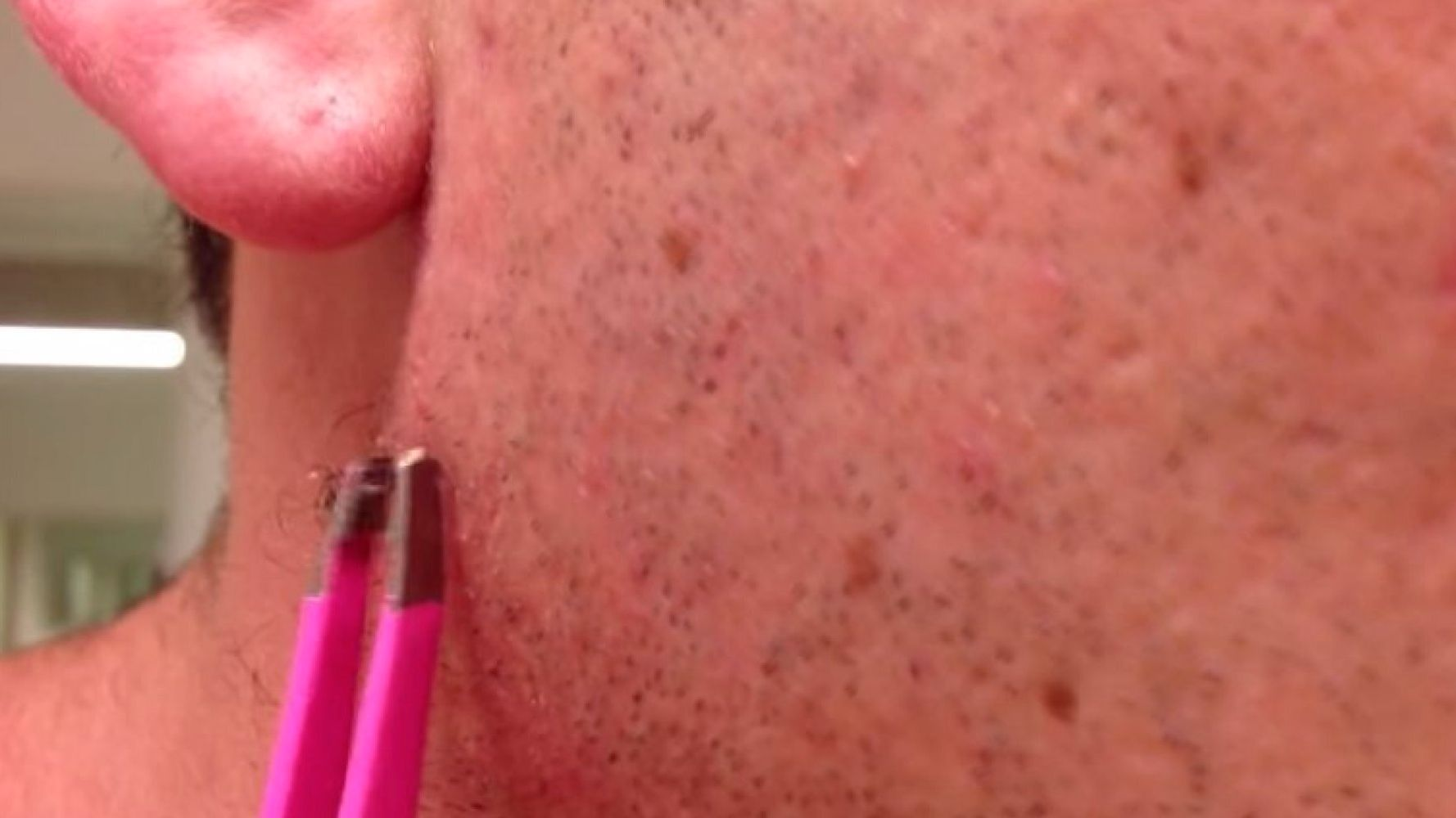 Man Pulls The Longest, Grossest Ingrown Hair Out Of His Face (And We