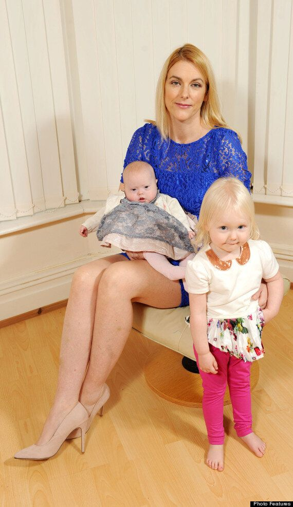 Mother With Severe Phobia Of Varicose Veins Begs Doctors To