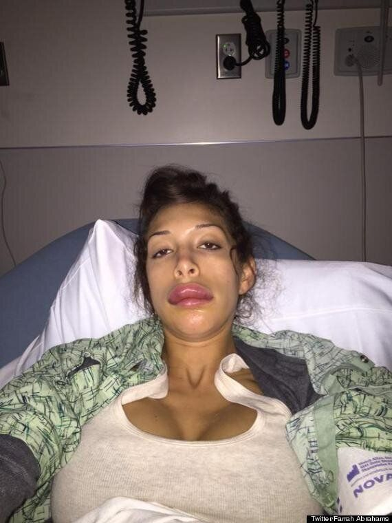 Farrah Abraham Reveals Botched Lip Injection Photos Following Emergency Hospital Dash