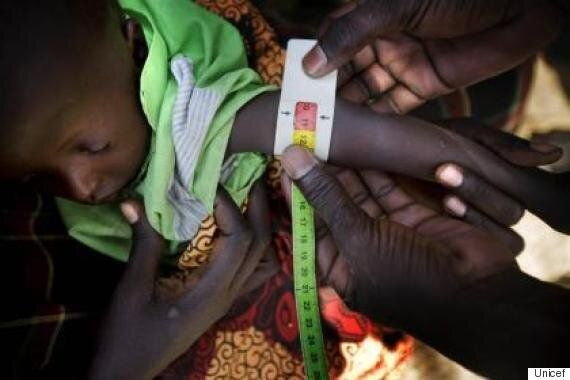 Unicef's 'Wearables For Good' Project Brings Small Scale Tech To A Big Scale