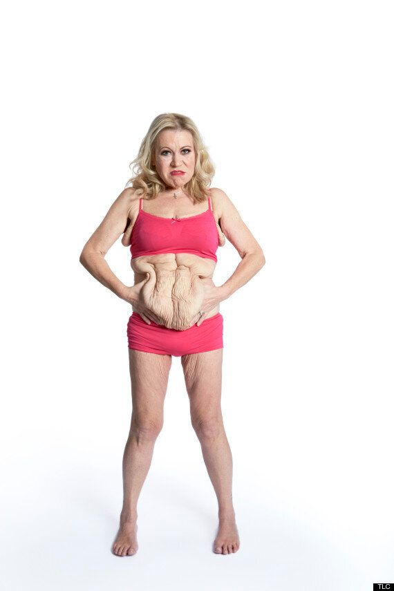 Tina Malone To Undergo Surgery To Remove 12lbs Of Excess Skin (And It'll All Be Caught On