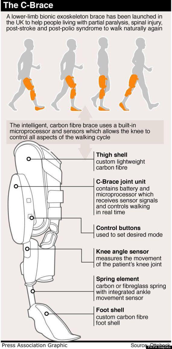 Pioneering British Man Fitted With C-Brace 'ExoSkeleton' Leg