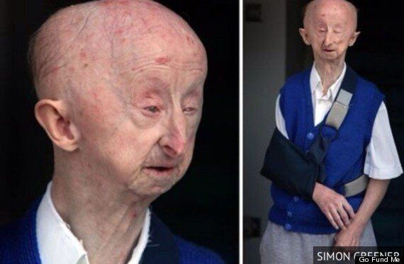 Alan Barnes' 'Mugger' Charged By Police, In Case That Prompted Thousands In