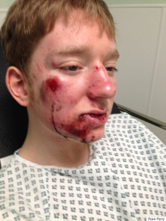 Sheffield Teen Cyclist Taron Stead Hit By Car Told 'Sorry, I Can't Stop, It'd Upset My