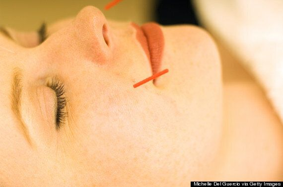 Tried And Tested: Facial Acupuncture Rehauls Your Skin Inside And