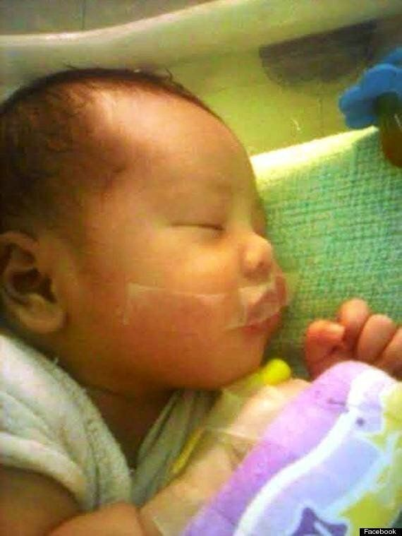 Nurse Taped Baby Yohannes Noval's Mouth Shut 'Because He Was Crying Too Much'