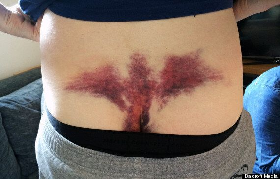 Groom Receives Angel Bruise After Falling Through Table On Stag