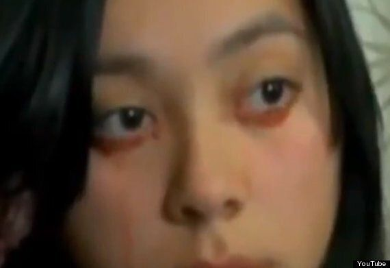 Yaritza Oliva, Chilean Woman Cries Tears Of Blood