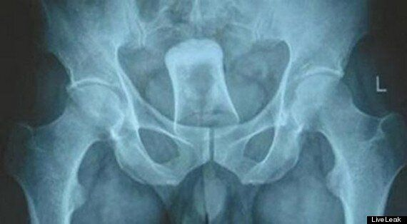 Shot Glass Inserted Into Anus Of Chinese Man Who Was Asked For Directions