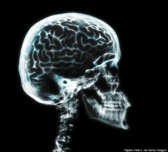 Paedophiles' Brains Are 'Tuned' To The Faces Of Children, Study