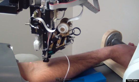 Veebot Robot Will Draw Your Blood Better Than A Human (If You're Brave Enough To Let It)