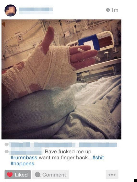 Teenager Loses Finger At Illegal Rave, Carries On Dancing Anyway