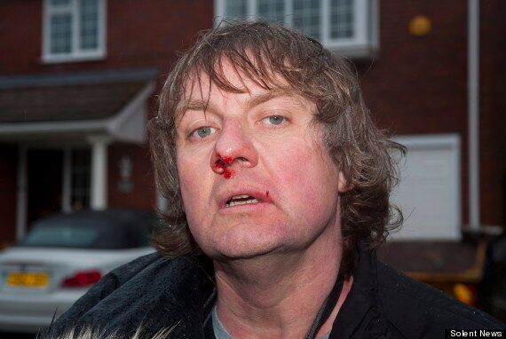 Photographer 'Assaulted' Outside Mike Hancock MP's