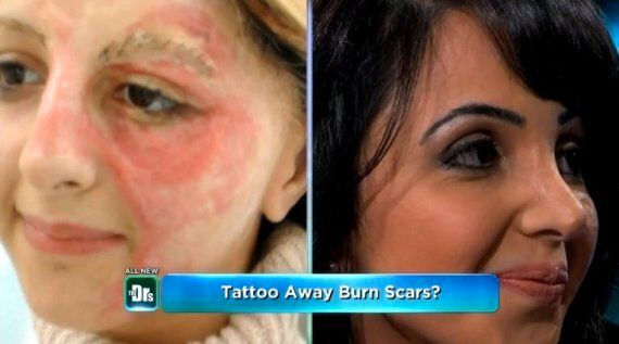 Woman Transforms Her Facial Burns Scar With Tattoo Ink And