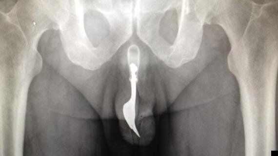 Fork In Penis X-Ray: Man, 70, Has Dining Implement Removed From Urethra