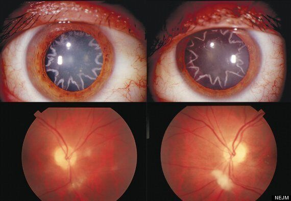 Man Left With Star-Shaped Cataracts After 14,000-Volt Electric