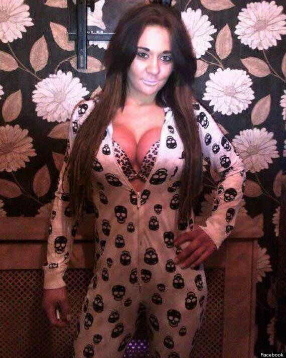 Glamour Model Josie Cunningham Is Selling Sex To Pay Back 36DD NHS Breast