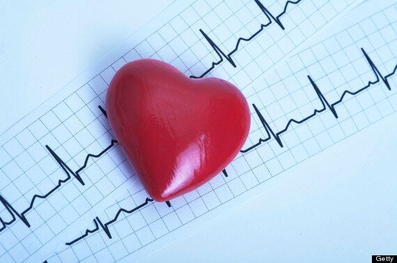 Heart Attack Risk Reduced By Multiple Stent Surgery