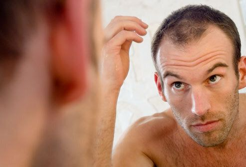 The Bald Truth - Why My Follicle Fixation Could Only Lead to