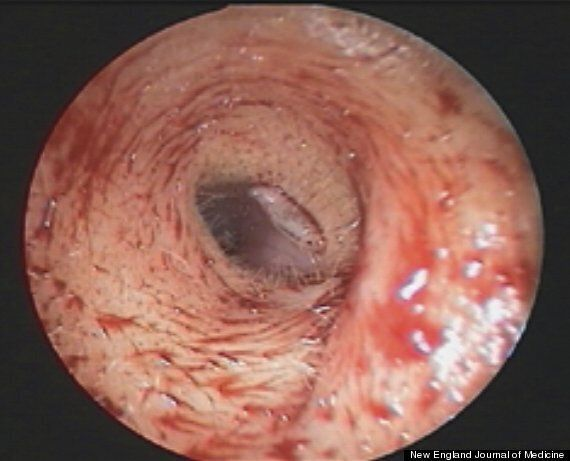 Live Maggot Found In Woman's Ear (GRAPHIC