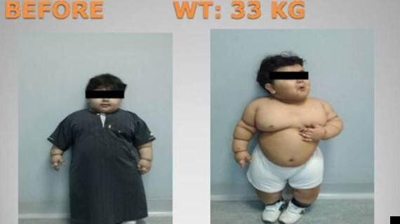 Saudi Arabian Boy, 2, Weighing 33kg Is Youngest To Have Drastic Weight Loss Surgery