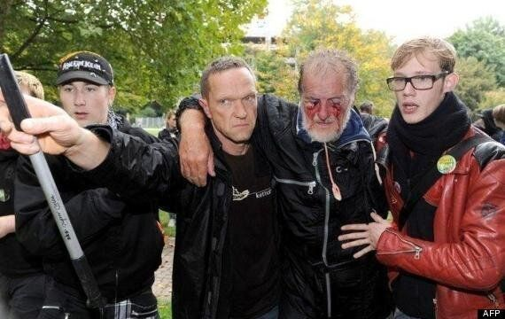 Pensioner Dietrich Wagner, Blinded By Water Cannon, Will Face Public Meeting At City Hall (GRAPHIC
