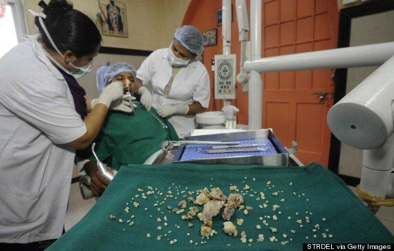 Indian Teenager Ashik Gavai Has 232 Teeth Removed In 'World Record' Surgery