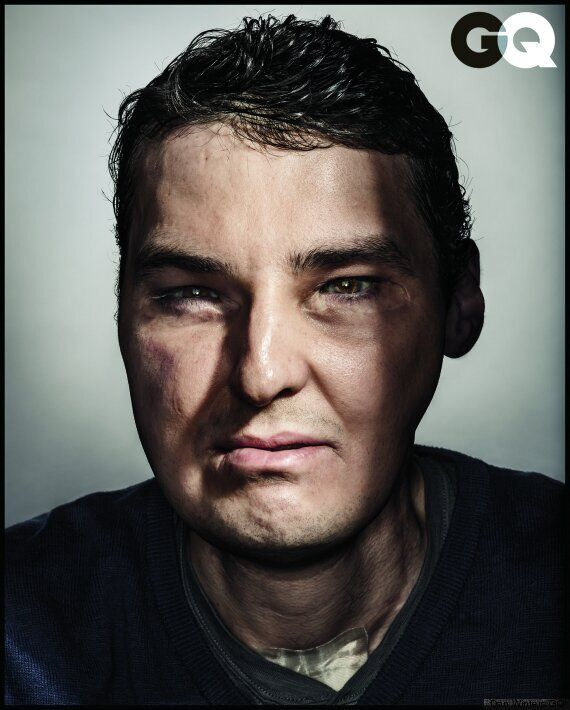 Richard Norris, Face Transplant Patient Appears On The Cover Of GQ Magazine (PICTURES)