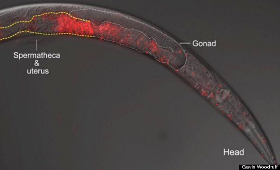 'Killer Sperm' Destroy A Female Worm's Ovaries, Then Kill