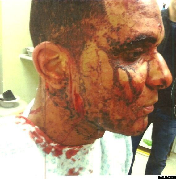 US Student Francesco Hounye Attacked By Asian Gang In East London