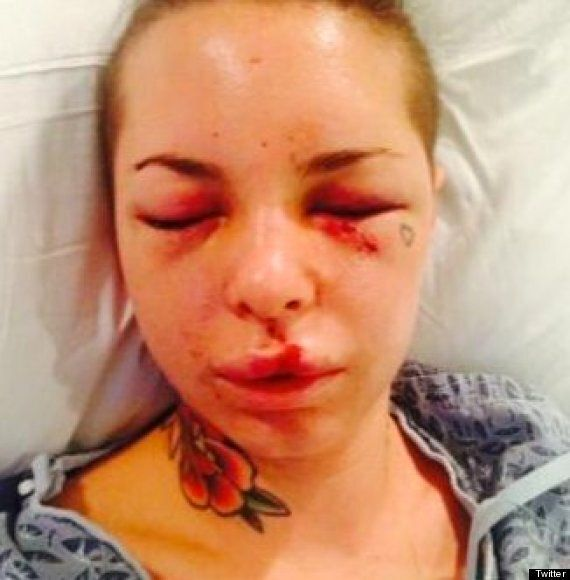 'War Machine' Jonathan Koppenhaver Arrested By US Marshals After Allegedly Beating Christy