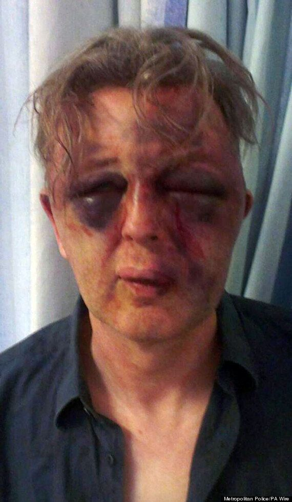 'I Fought For My Life' Says SOAS Law Lecturer Paul Kohler Beaten By Robbers At London