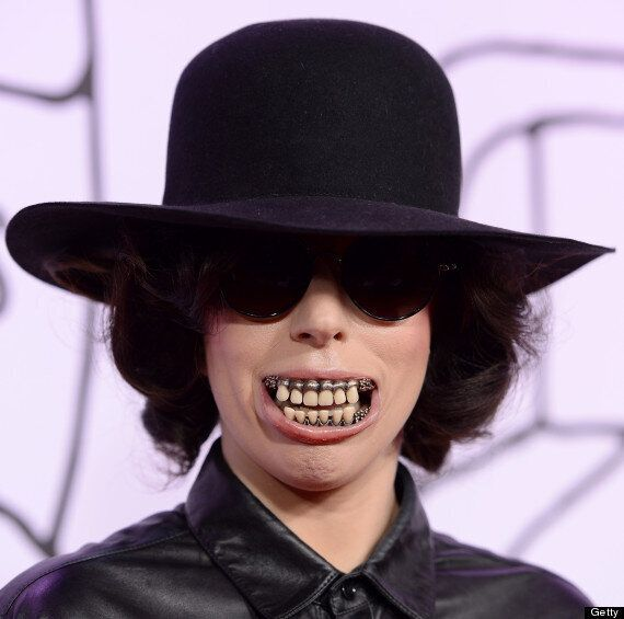 Lady Gaga Hides Behind Bizarre False Teeth At YouTube Music Awards After 'Splitting From Taylor Kinney'