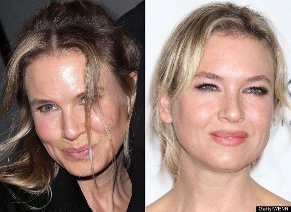Renee Zellweger Looks Unrecognisable As She Debuts New Face In LA