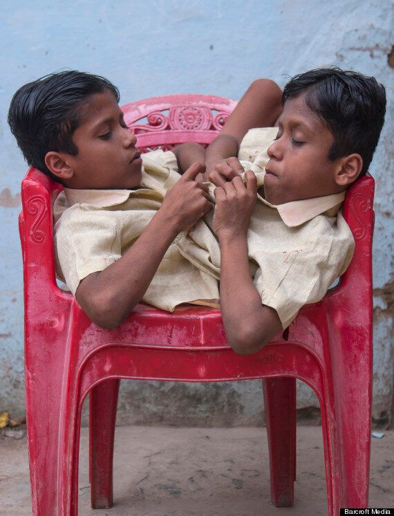 Conjoined Twins Shivanath and Shivram Sahu Perfect The 'Spider Walk' (PICTURES,