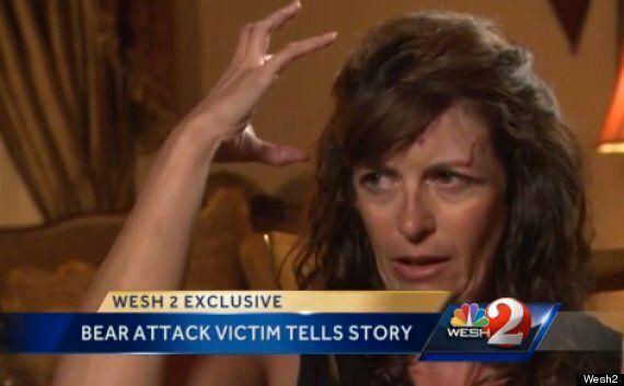 Bear Attack: Terri Franna 'Heard Animal's Teeth Going Through My Scalp' (PICTURE,