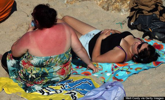 Dangerous Skin Cancer Rates Soar, With Package Holidays And Sunbeds