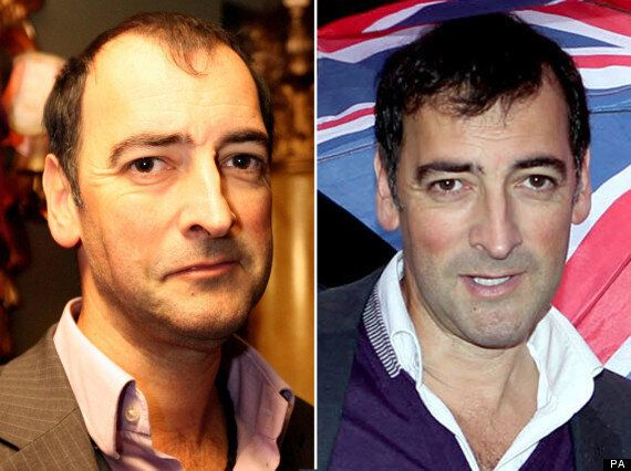 Alistair McGowan Hair Transplant: Has The Impressionist Had Surgery?