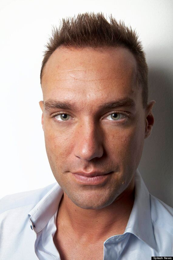 Calum Best Is the Latest Celeb To Have A Hair Transplant