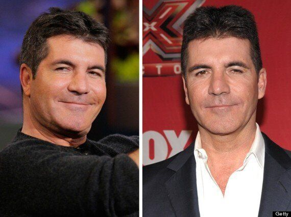 Simon Cowell Looks Puffy-Faced On Jay Leno's US Chat Show
