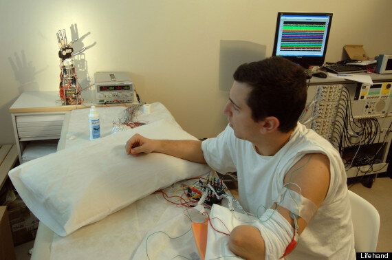 Bionic Hand Breakthrough: Direct Wiring To Nervous System To Restore Touch To