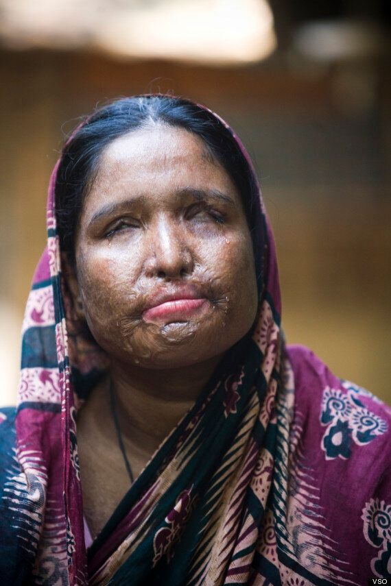 Acid Attack Victims Need Equality To Help Stop Violence, Says Campaigner Monira