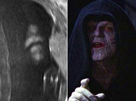 Stars Wars' Emperor Palpatine Appears In Baby's Ultrasound Scan