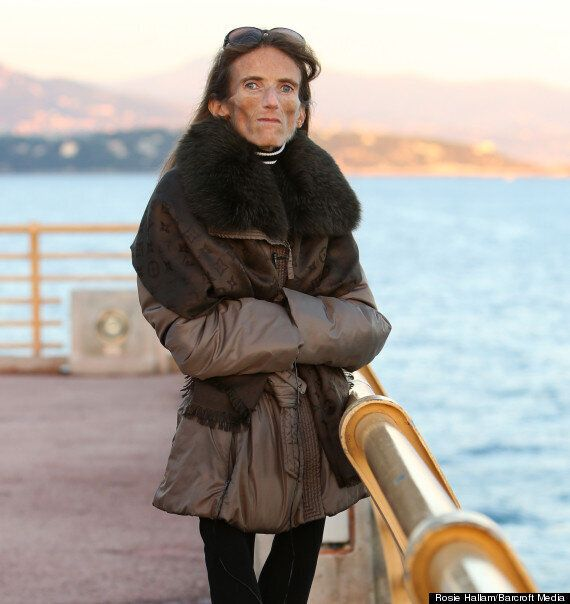 Anorexia Sufferer, Valeria Levitin, 'The World's Thinnest Woman' Shocked At Being 'Role