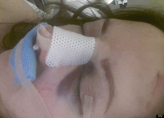 Carol Vorderman Breaks Nose: 'Loose Women' Star Has Facial Surgery After Falling Down Stairs