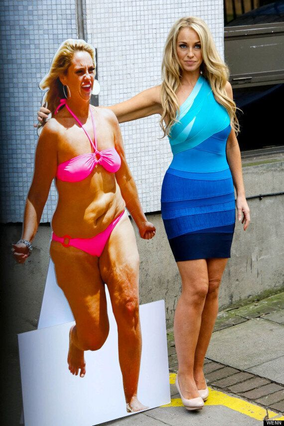 Josie Gibson Strips Naked Ahead Of Boob Job