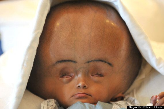 Roona Begum, Indian Girl With Severe Hydrocephalus, Has Life-Saving Surgery