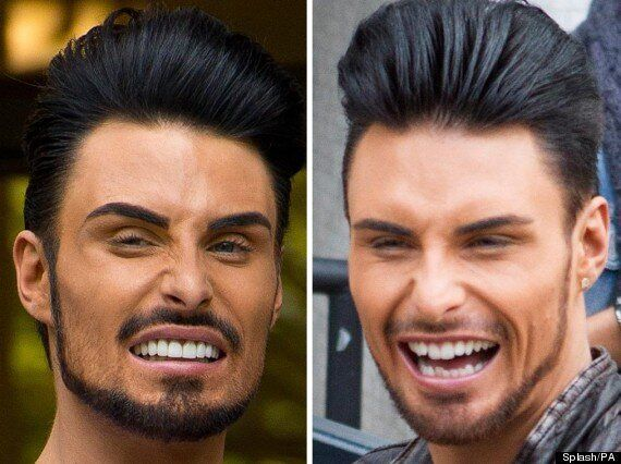 Rylan Clark Debuts New Teeth On 'Big Brother's Bit On The Side', Twitter Goes