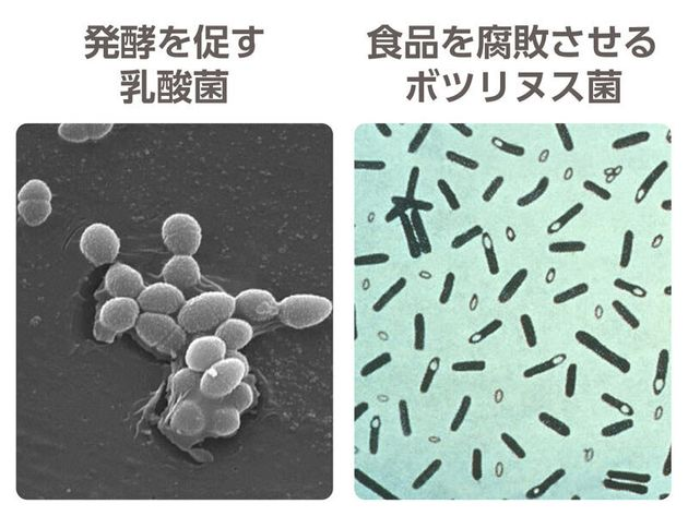 乳酸菌とボツリヌス菌