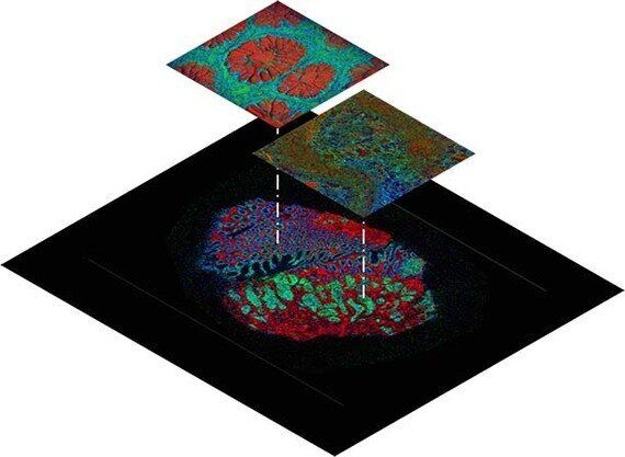'Google Earth' For Tumours Could Change Cancer Diagnostics And Drug Testing